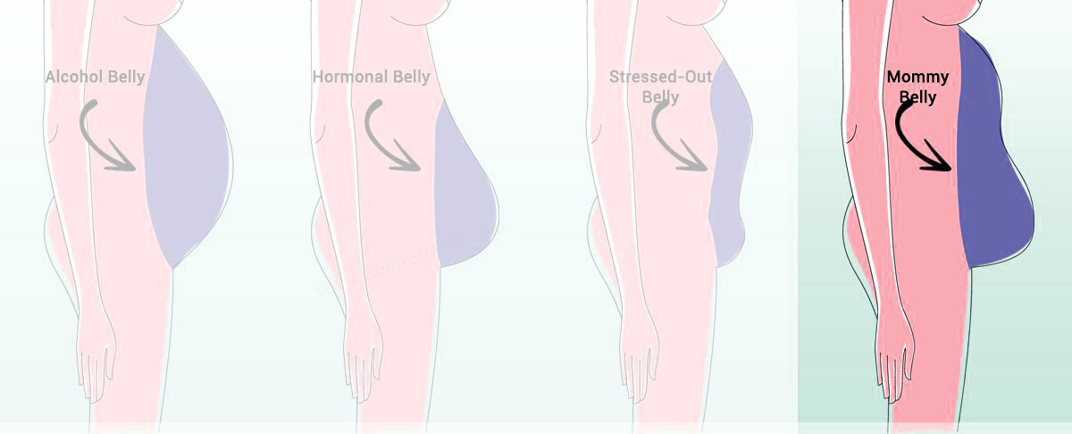 how to get rid of a mommy belly after decades